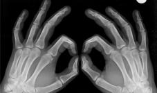 ترقق العظام مرض صامت يهدّد النساء